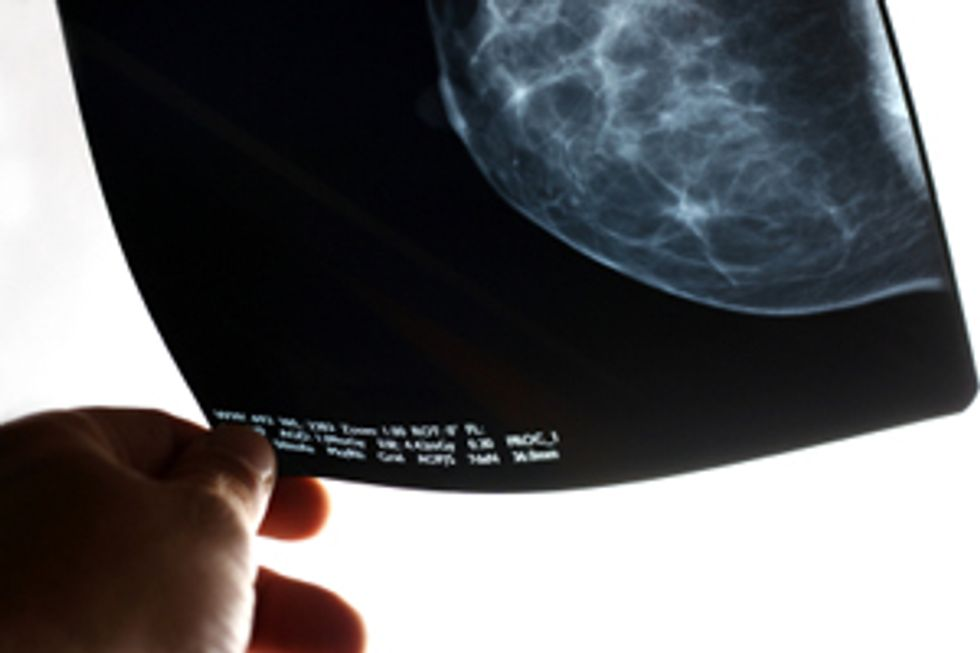 Mammogram Guidelines: Know the Facts