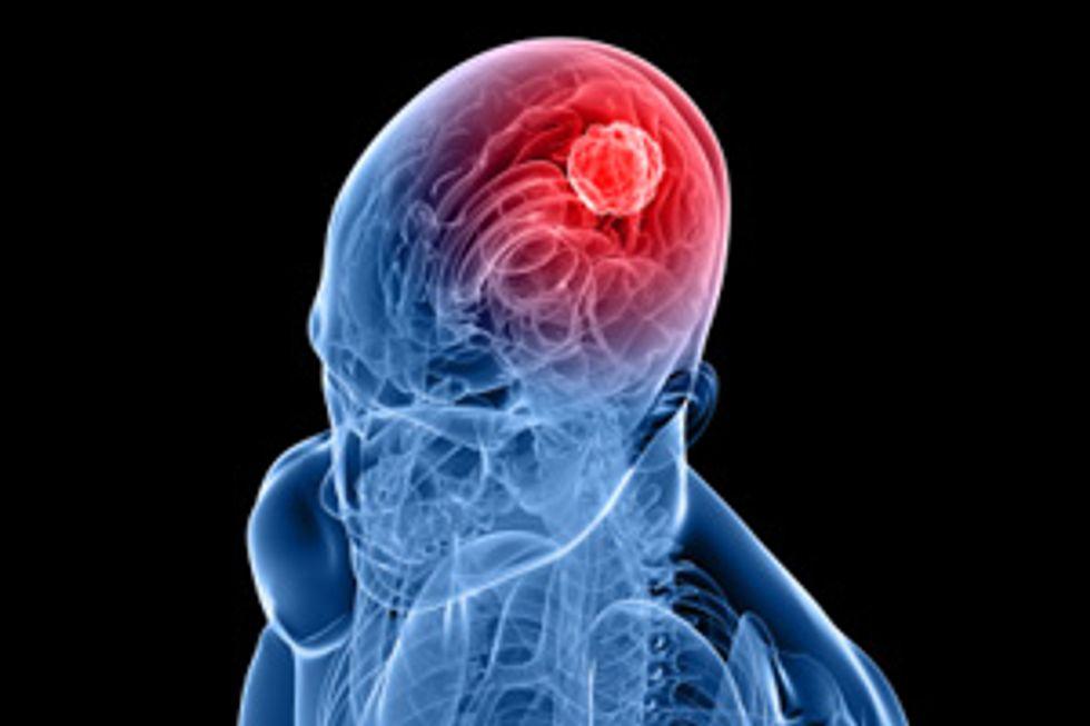 Understanding Cerebral Aneurysms