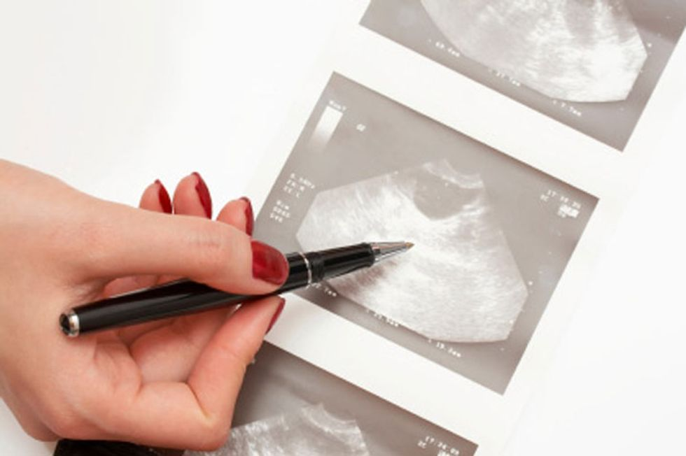 Fighting Ovarian Cancer: What Every Woman Must Know