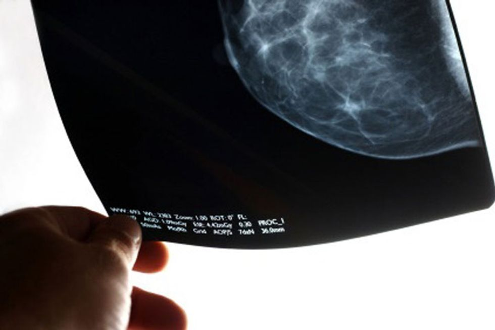 Stem Cell Breast Reconstruction: Understanding the Issues