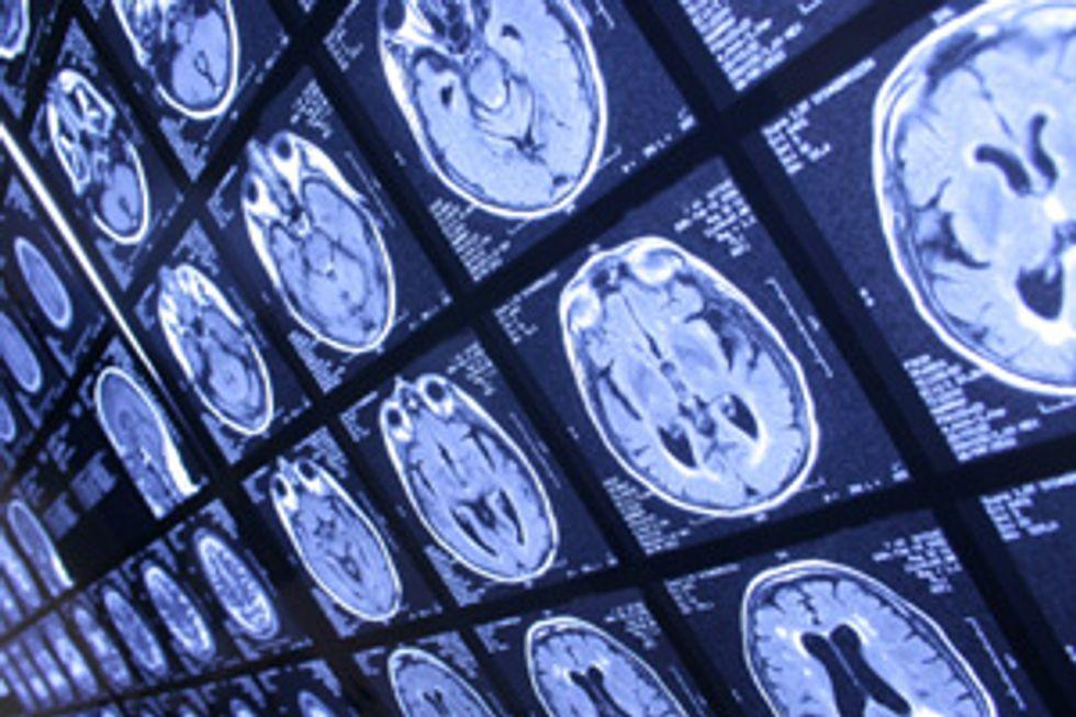 Alzheimer's: Diabetes of the Brain?