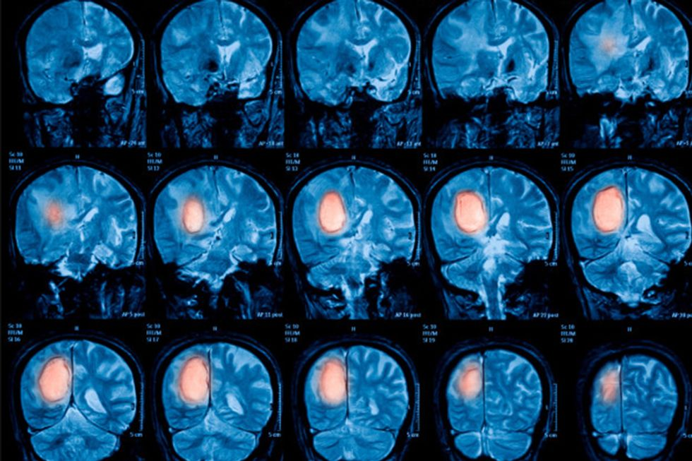 What You Need to Know About Glioblastoma
