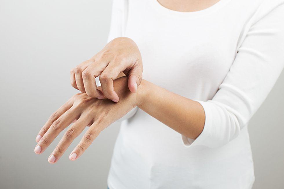 Quiz: Do You Have Eczema?