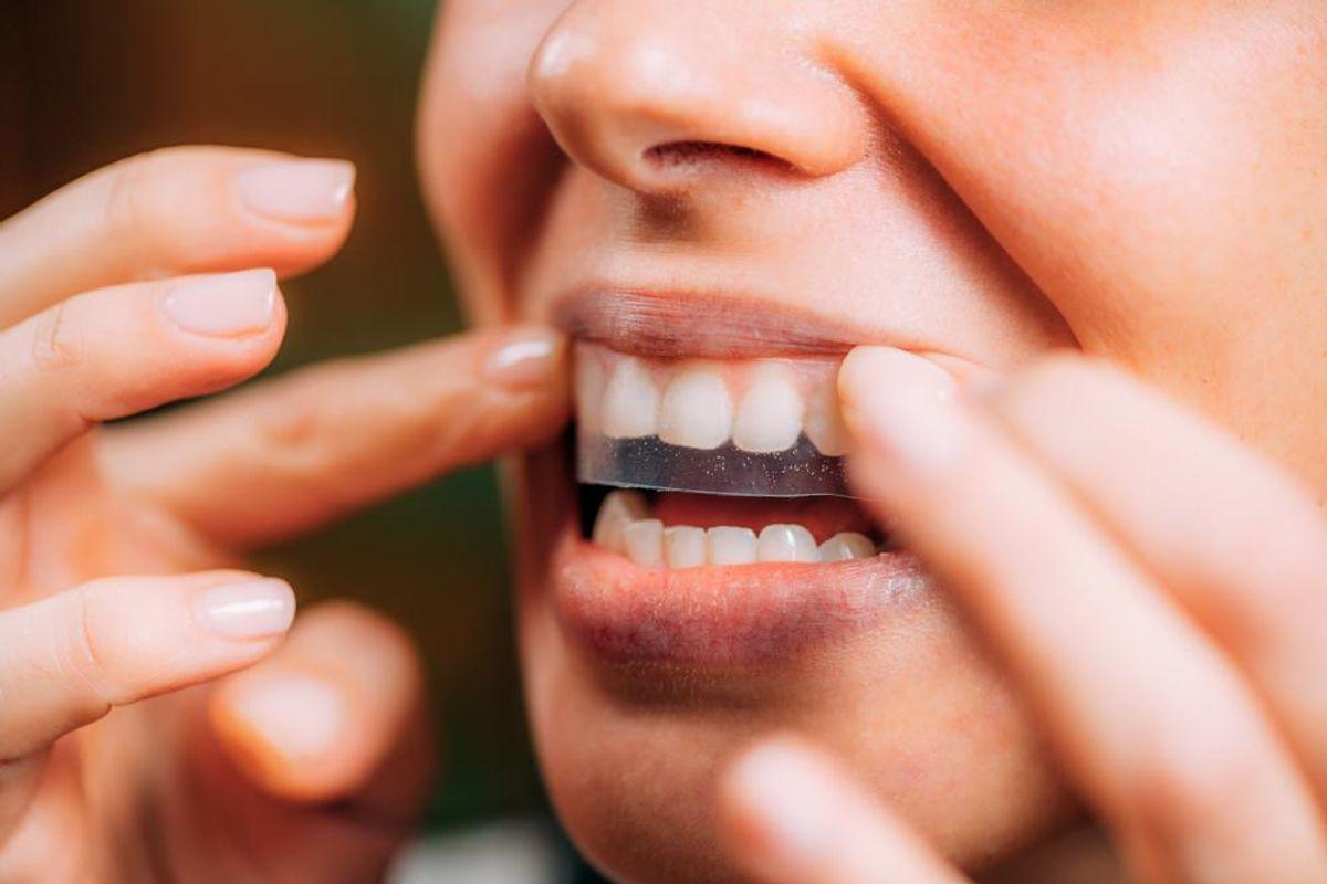 Self-Care Ideas: 3-Ingredient DIY Teeth Whitening Treatment